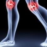 Dolegliwość reumatyczna- objawy oraz leczenie